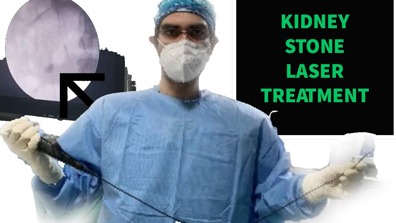 Know about kidney stone treatment in Delhi