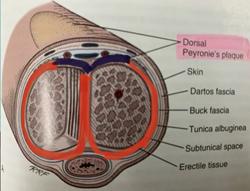 Peyronie's disease pathophysiology