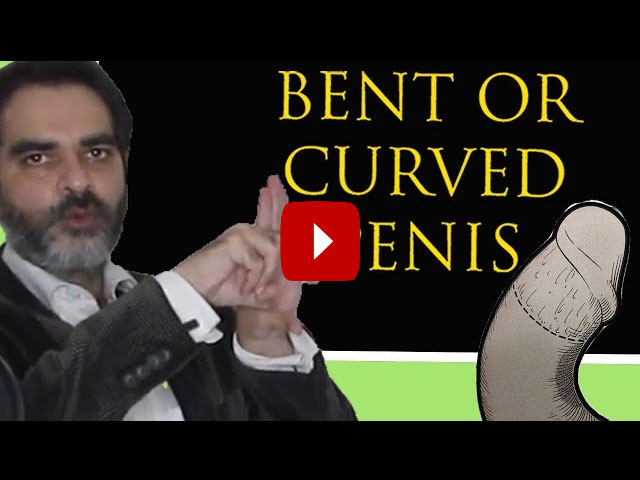 Plication surgery for curved penis and bend penis